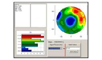 誘電体と界面の電気特性評価